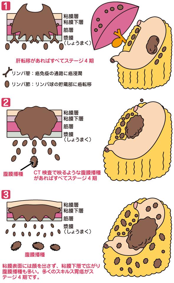 胃がん ステージ 4 余命