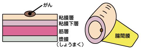 が ん 末期 大腸