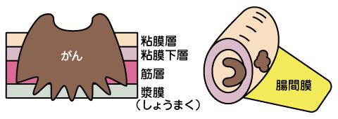 大腸 が ん ステージ 3 余命