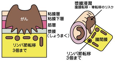 ステージ 余命 が 3 ん 大腸