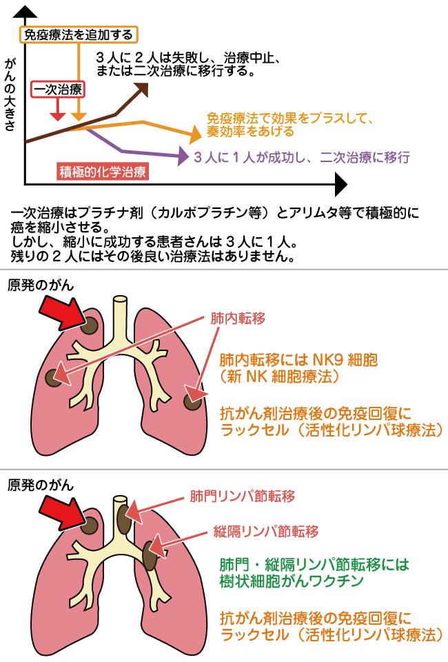 転移 ステージ 癌 リンパ 節