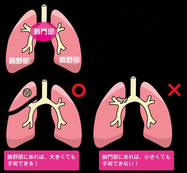 肺がん ステージ 4 余命 高齢 者