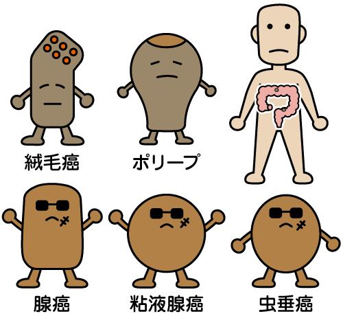 ん 大腸 特徴 が